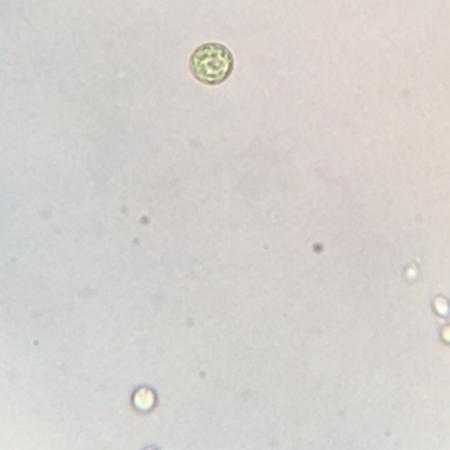 Picture of Chlorella Zofingiensis.